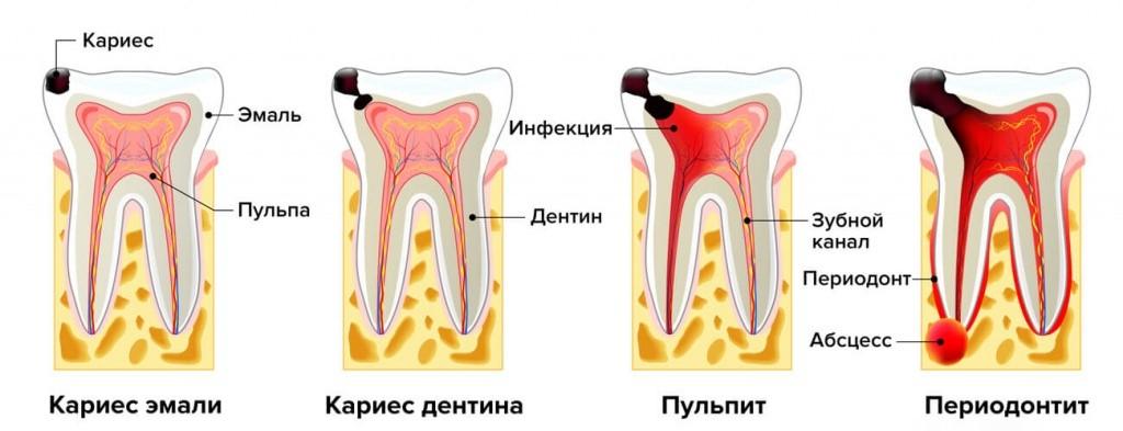 Степень поражения зуба кариесом
